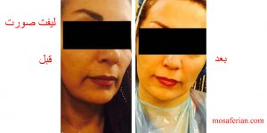 قبل و بعد لیفتینگ صورت بدون جراحی