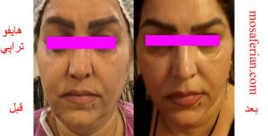 عکس قبل و بعد زاویه سازی صورت
