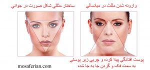 عکس زاویه دار شدن صورت و مقایسه مثلث صورت در سنین جوانی و میانسالی