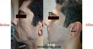 درمان جای جوش قبل و بعد