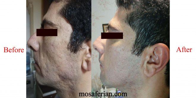 تیرگی پشت لب جای جوش صورت با روش سابسیژن همراه با میکرونیدلینگ موثرترین ...
