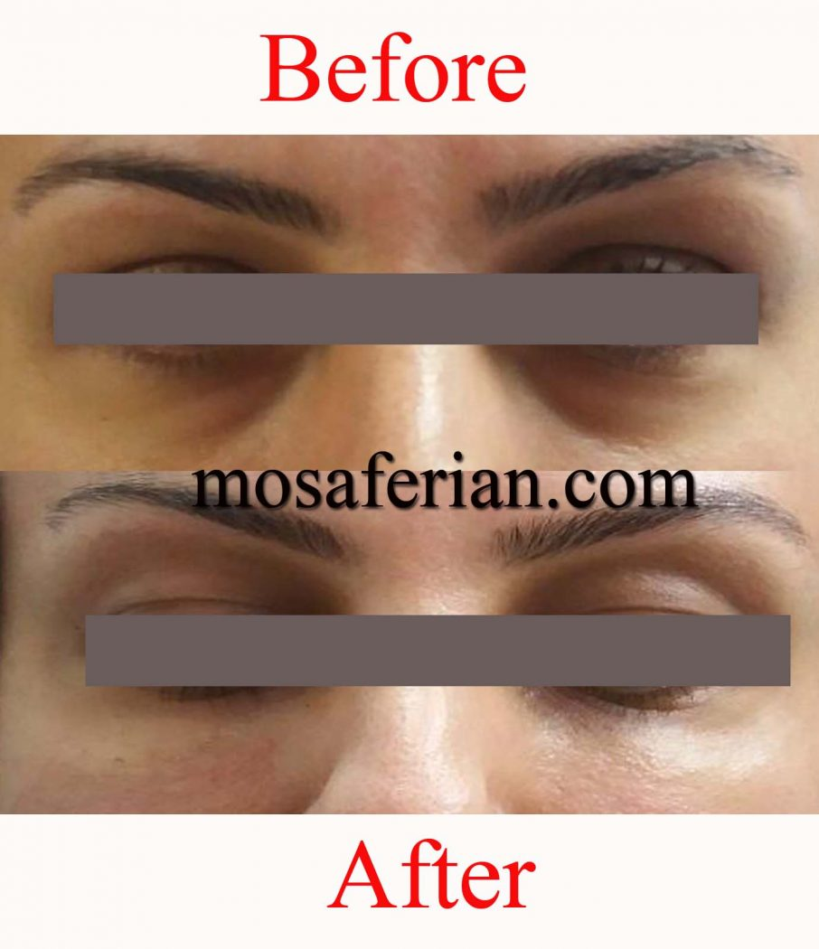 تزریق ژل زیر چشم قبل و بعد