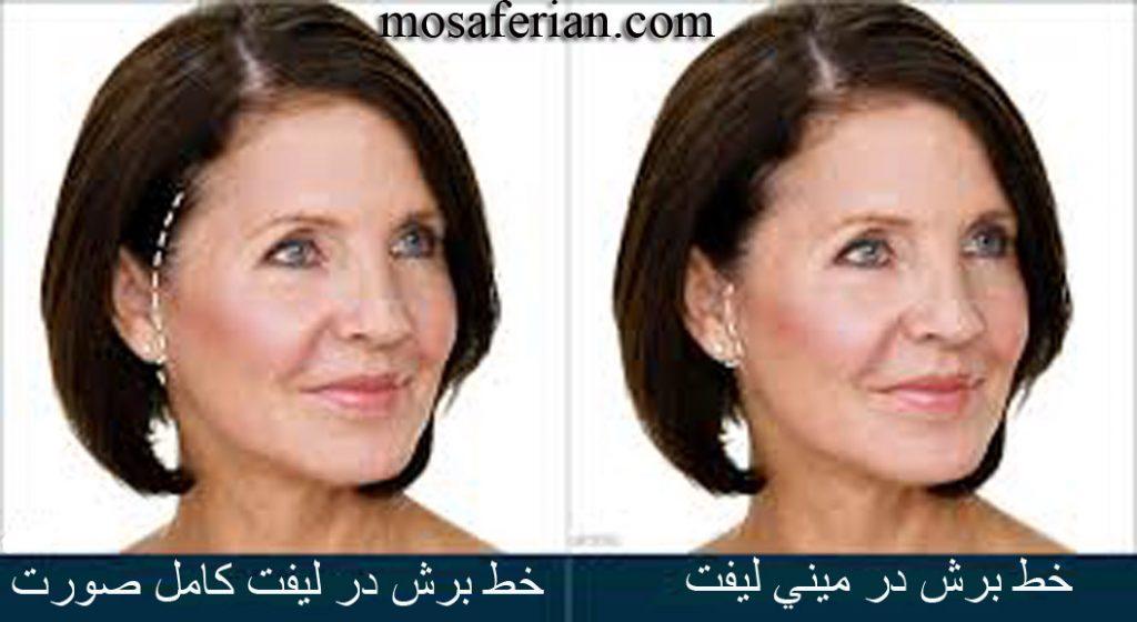 تفاوت مینی لیفت صورت با لیفت کامل